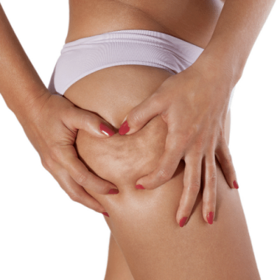 How to get rid of Cellulite in 2 weeks, and three other myths!
